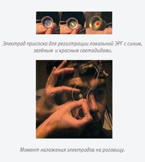 Возможности комплекса «Электроретинограф МБН»