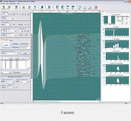 Программное обеспечение нейромиографа МБН